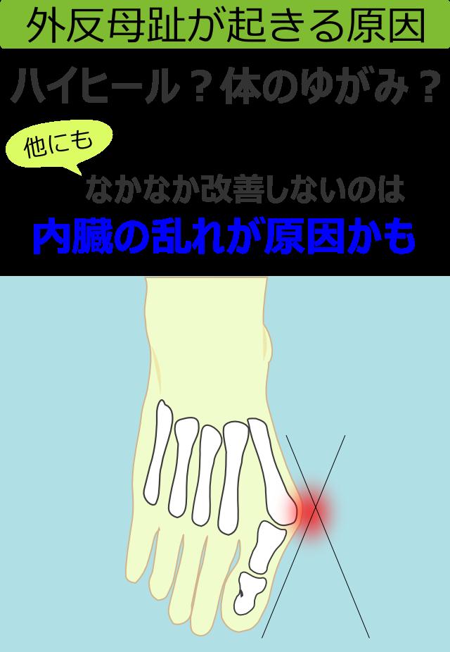 外反母趾が起きる原因