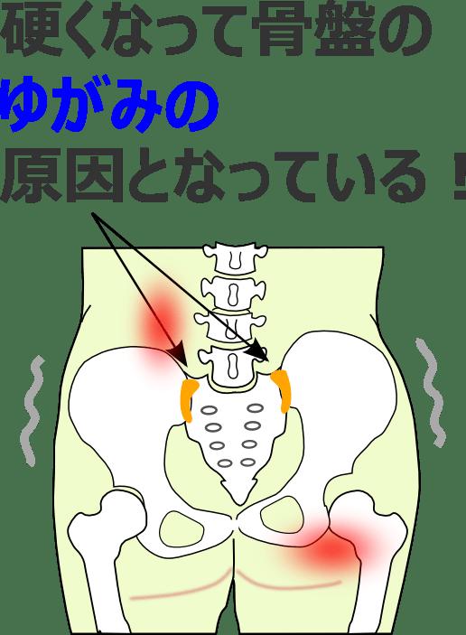 硬くなって骨盤のゆがみの原因となっている