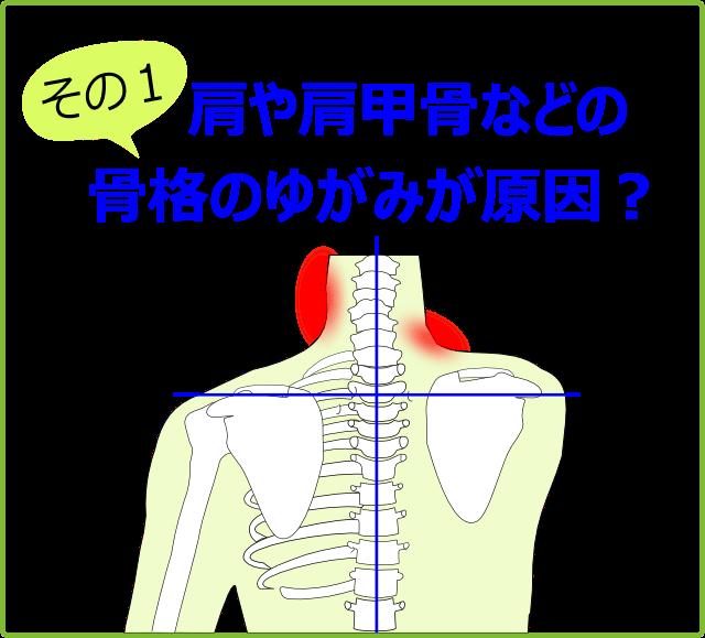 肩や肩甲骨などの骨格のゆがみが原因?