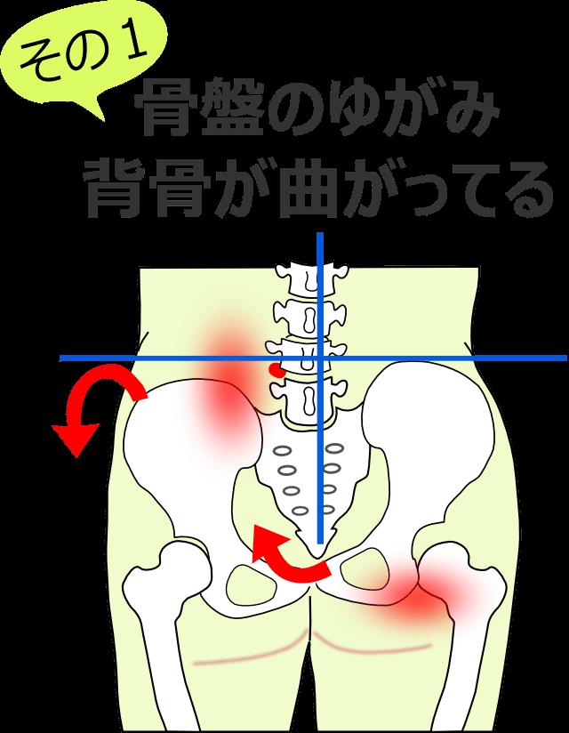 骨盤のゆがみと背骨が曲がっている
