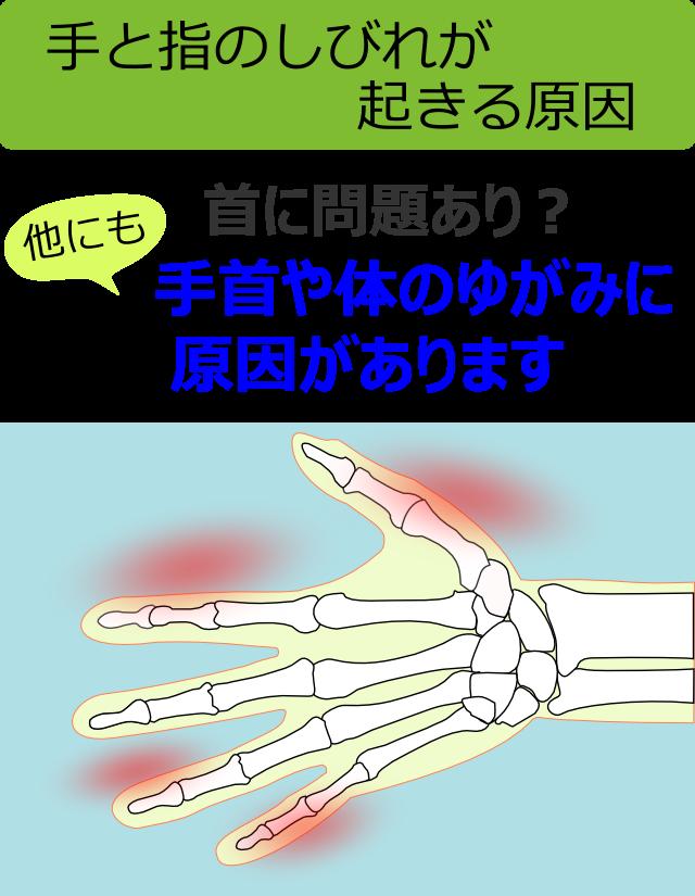 手と指のしびれが起きる原因