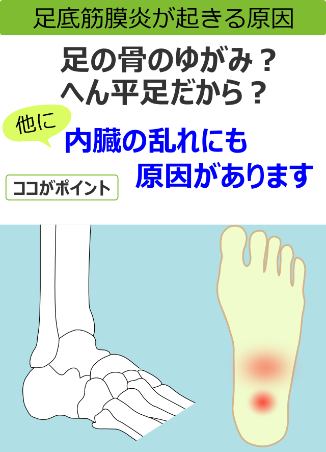 足底筋膜炎が起きる原因