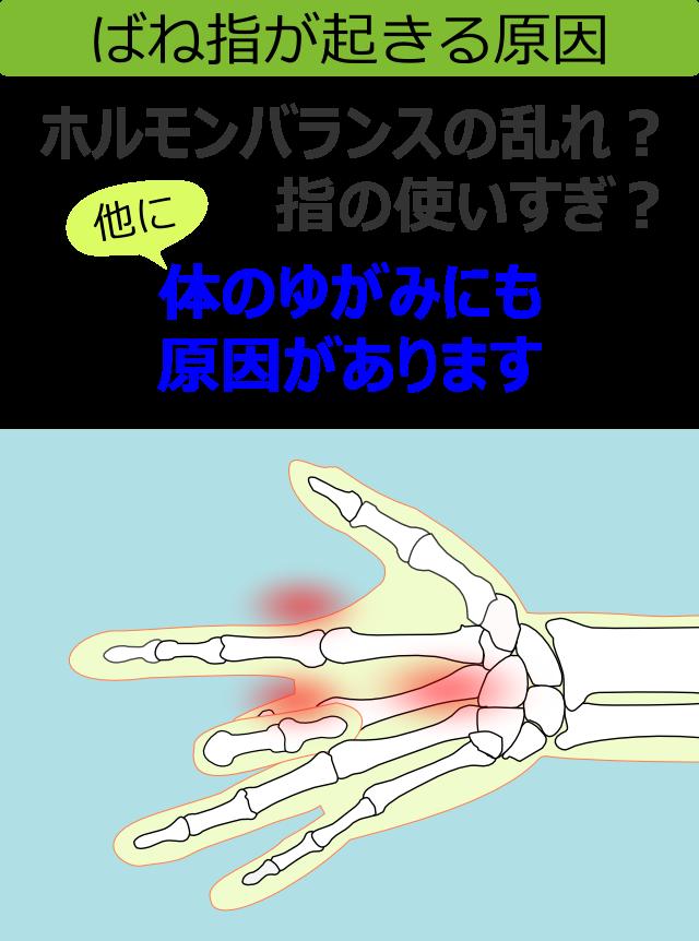 ばね指が起きる原因