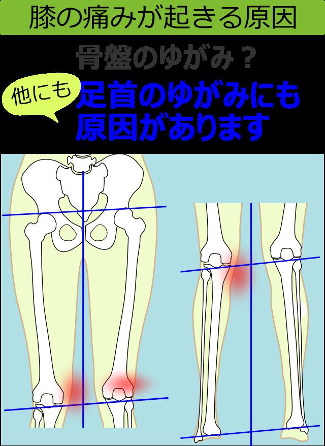 膝の痛みが起きる原因