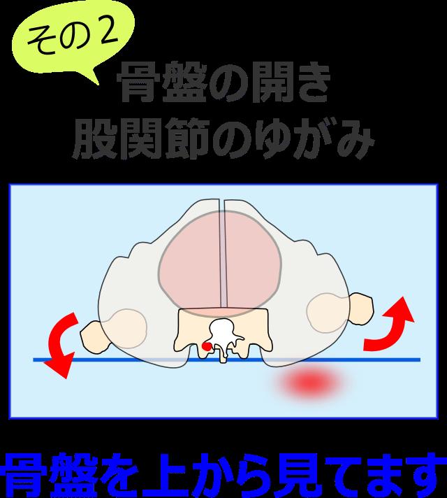 骨盤の開きと股関節のゆがみ