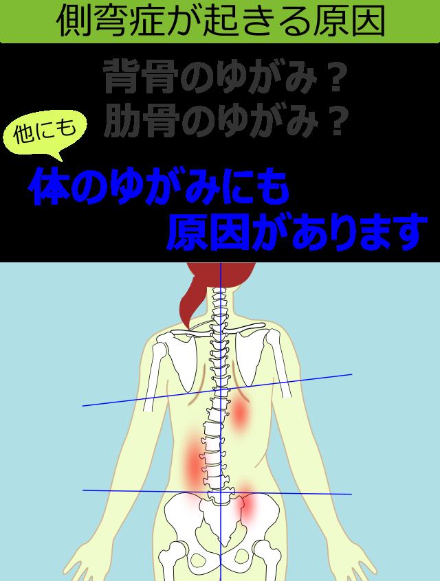 側弯症が起きる原因
