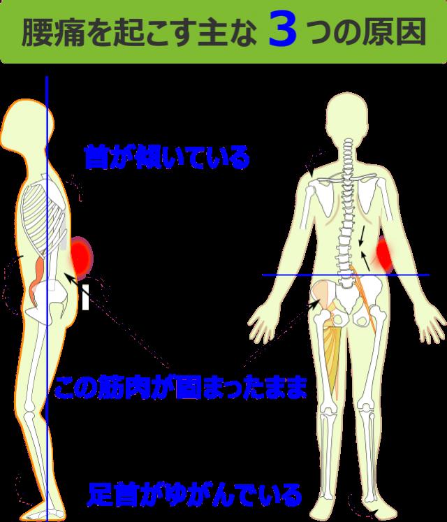 腰痛を起こす主な3つの原因