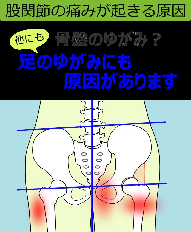 股関節の痛みが起きる原因