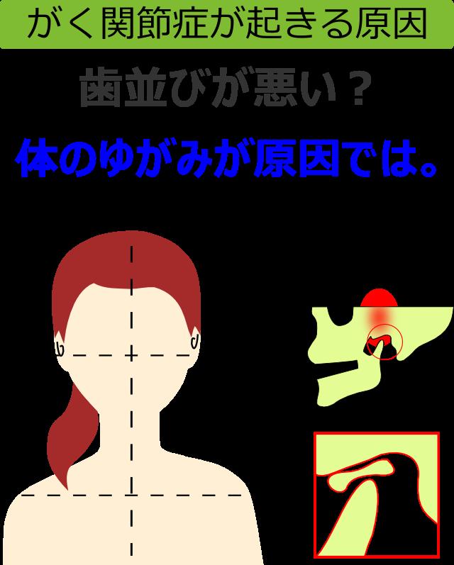 がく関節症が起きる原因