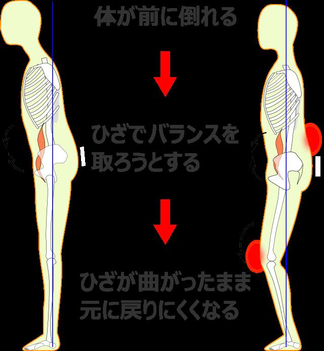 体のゆがみの過程2